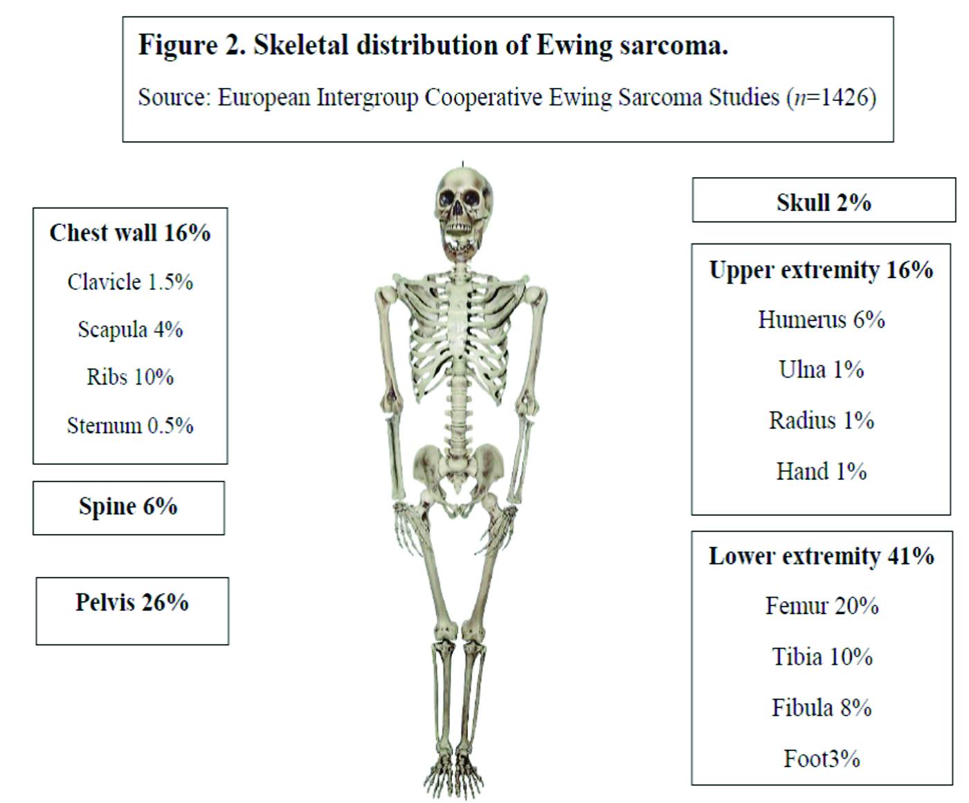 Ewing Sarcoma Focus On Medical Management Journal Of Bone