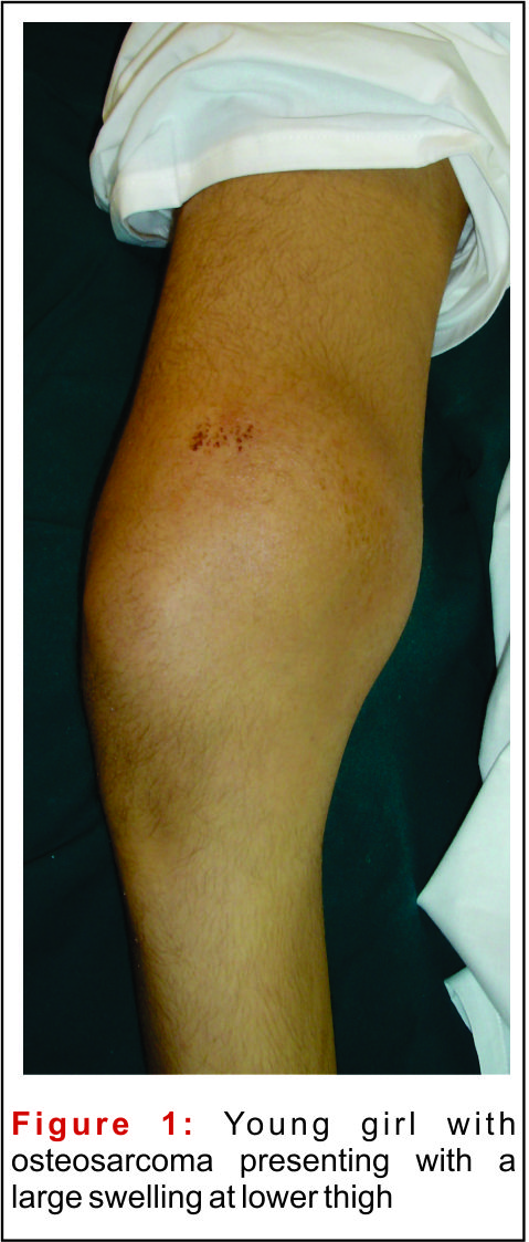 Osteosarcoma Knee Tumor | www.pixshark.com - Images ...