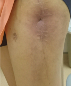 Figure 2B: Photograph of the left thigh, 23 months after debridement showing externally healed sinus track. Mild erythema was noted surrounding the sinus track secondary to occlusive dressing. Previous dressing was dry and intact.
