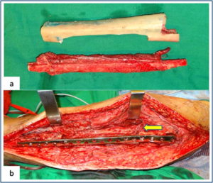 Figure 2: Vasularised fibula + allograft combination (a) Showing vascularised fibula with pedicle and prepared tibial allograft. (b) Allograft and vasularised fibula construct used for the intercalary resection of femur. Arrow showing the microvascular anastomosis between donor and recipient vessels.